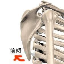 肩の痛みで悩んでいる方Part6 ~腕の挙上と猫背の関係~