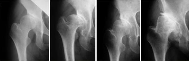 股関節について Part3 ~変形性股関節症~